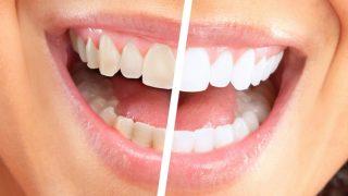 ディノベートデンタルホワイトプロの悪い口コミは?本当に歯は白くなるの?口コミをまとめてみた
